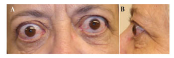 prednisone graves ophthalmopathy