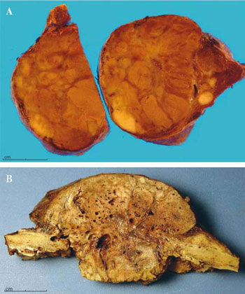 Minimally invasive thyroid cancer